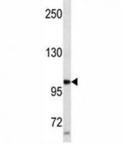 Progesterone Receptor antibody western blot analysis in SK-BR-3 lysate. Expected molecular weight: 82-94 kDa (isoform A) and 99-120 kDa (isoform B).