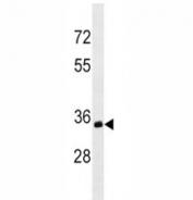 Anti-CD20 antibody western blot analysis in Ramos lysate.