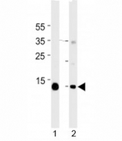 Myoglobin antibody western blot analysis in mouse 1) heart and 2) skeletal muscle tissue lysate. Predicted molecular weight ~17 kDa.