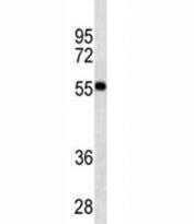 VDR antibody western blot analysis in MDA-MB453 lysate. Predicted molecular weight 48/54 kDa (isoforms 1/2).