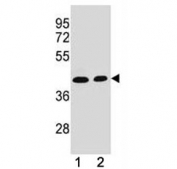 ADA antibody western blot analysis in (1) CEM and (2) Jurkat lysate. Expected/observed molecular weight ~41 kDa.