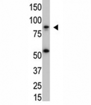 The IKK beta antibody used in western blot with SK-BR3 cell lysate. Predicted molecular weight ~87 kDa.