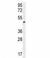 ANGPTL1 antibody western blot analysis in HeLa lysate