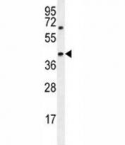 AMACR antibody western blot analysis in MDA-MB231 lysate. Predicted molecular weight ~43kDa.