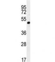 A4GALT antibody western blot analysis in 293 lysate. Predicted molecular weight ~40 kDa.