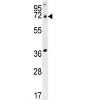 ACOT11 antibody western blot analysis in human HepG2 lysate. Predicted molecular weight ~68 kDa.