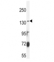 ABCC3 antibody western blot analysis in MDA-MB435 lysate