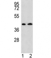AADAT antibody western blot analysis in human 1) HepG2, and 2) Y79 lysate. Predicted molecular weight: ~47 kDa.