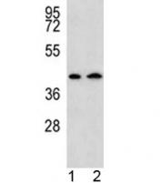 AADAT antibody western blot analysis in human 1) HepG2, and 2) Y79 lysate. Predicted molecular weight: ~47 kDa.