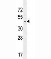 CD34 antibody western blot analysis in Jurkat lysate.  Expected size is 41~110 kDa depending on glycosylation level.