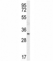 TTF1 antibody western blot analysis in HeLa lysate.