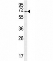 CD31 antibody western blot analysis in CHO lysate.