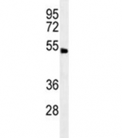 ABHD8 antibody western blot analysis in human NCI-H292 lysate. Predicted molecular weight ~47 kDa.