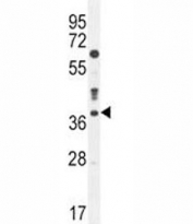 Caspase-3 antibody western blot analysis in MDA-MB435 lysate
