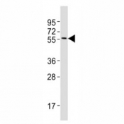 Western blot testing of MITF antibody at 1:2000 dilution + A375 lysate; Predicted molecular weight: 55-60 kDa.