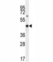 WT1 antibody western blot analysis in MCF-7 lysate. Predicted molecular weight: ~49 kDa