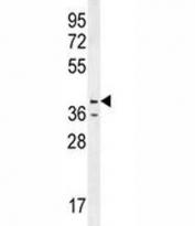 Caspase-12 antibody western blot analysis in HL-60 lysate. Predicted molecular weight ~50/36~42kDa (pro/active)