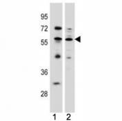 KLF4 antibody western blot analysis in (1) MCF-7 (2) K562 lysate. Predicted molecular weight: 50-60 kDa + ~75 kDa