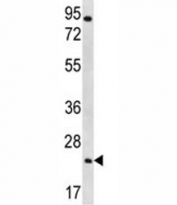 AQP5 antibody western blot analysis in NCI-H292 lysate. Predicted molecular weight ~28 kDa.