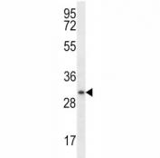 Myogenin antibody western blot analysis in ZR-75-1 lysate. Predicted molecular weight ~25 kDa, routinely observed at ~34 kDa.