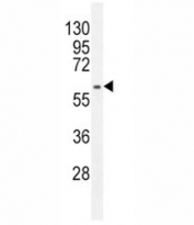 Anti-MDM2 antibody western blot analysis in HepG2 lysate. Predicted molecular weight: ~55 kDa but can be observed at up to ~90 kDa.