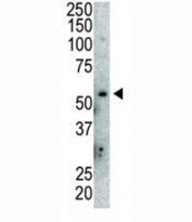 Western blot analysis of anti-MDM2 antibody and mouse lung tissue lysate. Predicted molecular weight: ~55 kDa but can be observed at up to ~90 kDa.