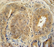 Anti-MDM2 antibody immunohistochemistry analysis in formalin fixed and paraffin embedded human prostate cancer.