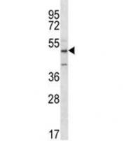 ABI2 antibody western blot analysis in Jurkat lysate. Predicted molecular weight ~55 kDa.