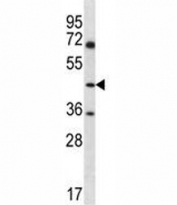 ASS1 antibody western blot analysis in Jurkat lysate