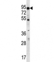 ABCD2 antibody western blot analysis in K562 lysate. Predicted molecular weight: ~83 kDa.