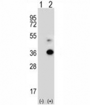 Western blot analysis of ANGPTL7 antibody and 293 cell lysate either nontransfected (Lane 1) or transiently transfected (2) with the ANGPTL7 gene. Predicted molecular weight ~35 kDa, observed at 35-50 kDa depending on glycosylation level.