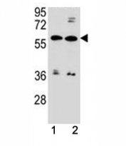 ABCG4 antibody western blot analysis in MDA-MB453, ZR-75-1 lysate. Predicted molecular weight 60-80 kDa