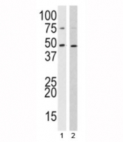 Western blot analysis of SUV39H2 antibody and 1) 293, 2) HL-60 lysate