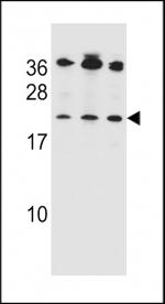 Bak antibody western blot analysis in 1) Jurkat, 2) MDA-MB453 and 3) 293 lysate