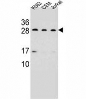 CD79a antibody western blot analysis in K562, CEM, Jurkat lysate. Predicted/Observed molecular weight: 25~47 kDa depending on glycosylation level