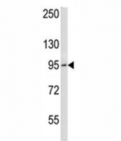 BCL6 antibody western blot analysis in HeLa lysate. Predicted molecular weight: 78~100 kDa.