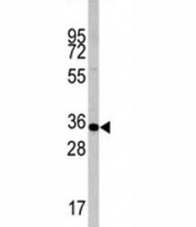 Western blot analysis of Caspase-6 antibody and mouse liver tissue lysate. Predicted molecular weight: ~33 kDa (precursor).