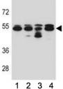TUBB8 antibody western blot analysis in 293, A549, HepG2, K562 lysate.