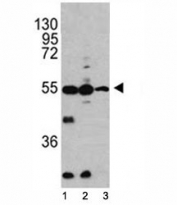 Western blot analysis of Caspase-2 antibody and 1) HL-60, 2) K562, 3) Ramos lysate.