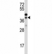 Western blot testing of CTGF antibody and NCI-H460 lysate. Predicted/observed molecular weight ~38kDa.