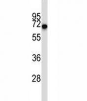 CD5 antibody western blot analysis in ZR-75-1 lysate. Observed molecular weight 55~67 kDa depending on glycosylation level.