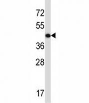 ACTG2 antibody western blot analysis in CEM lysate