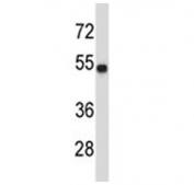 TUBA3C antibody western blot analysis in MDA-MB435 lysate.