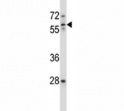 ICAM3 antibody western blot analysis in ZR-75-1 lysate. Observed molecular weight: 60~120 kDa depending on glycosylation level.