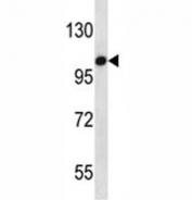 TLR7 antibody western blot analysis in HepG2 lysate