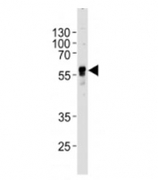 Western blot analysis of lysate from human SH-SY5Y cell line using ABHD3 antibody at 1:1000 for each lane. Predicted molecular weight ~46 kDa.