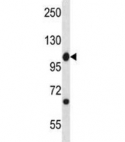 Abl1 antibody western blot analysis in mouse spleen tissue lysate. Predicted molecular weight ~122 kDa.