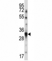 BAFF antibody western blot analysis in MDA-MB231 lysate. Expected molecular weight ~31kDa.