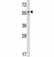 BECN antibody western blot analysis in Jurkat lysate