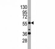 Western blot analysis of SOX9 antibody and K562 lysate. Predicted molecular weight: 56-65 kDa.